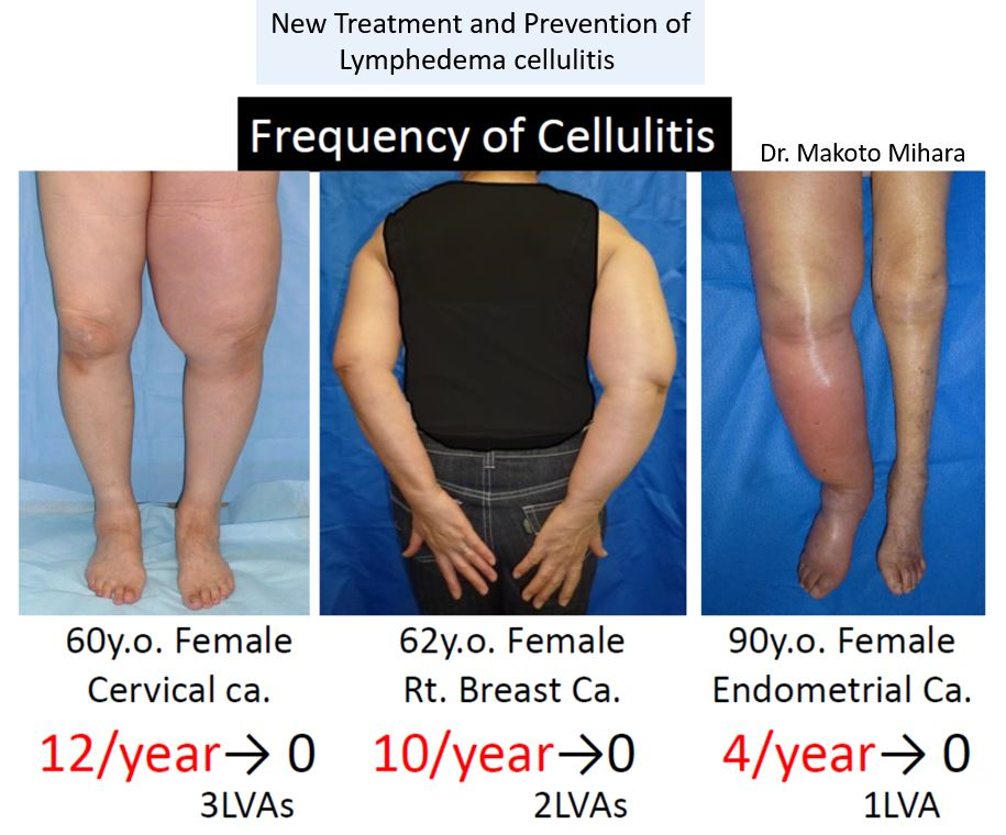 New treatment and prevention of Lymphedema Cellulitis, Lymphedema Treatment Japan
