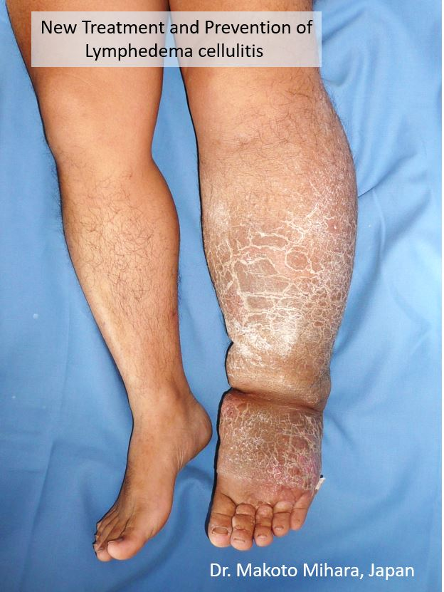 After cellulitis, elephantitis, lymphedmea, Lymphedema Treatment Japan