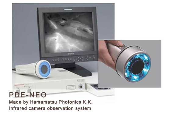 ICG lymphography Diagnosis, Lymphedema Treatment Japan by Dr. Makoto Mihara