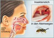 Insektenstich im Mund und Rachen