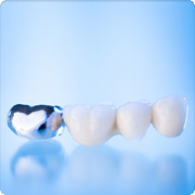 © Imex Dental