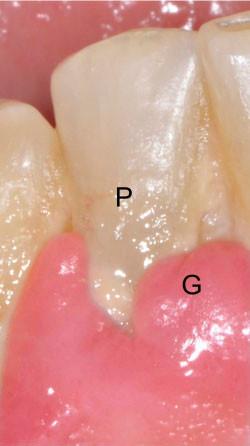 Typisch für die Entzündung des Zahnfleisches, die Gingivitis, ist seine Schwellung und Rötung (G). Die Ursachen, Plaque und Zahnstein (P) sind deutlich zu erkennen.