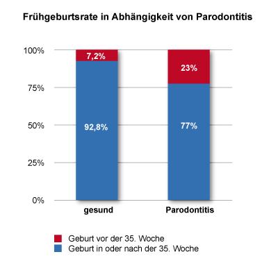 Risiko für Frühgeburt bei Schwangeren mit Parodontitis dreifach erhöht