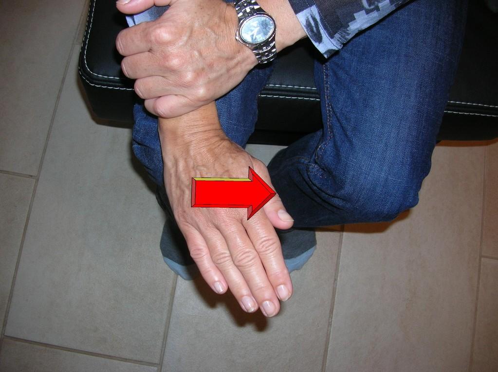 Fixieren Sie den Unterarm und bewegen Sie die Hand in Richtung Daumen. Achten Sie darauf, dass die Bewegung im Handgelenk stattfindet