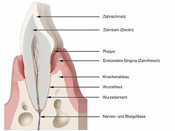 Schema-Zeichnung entzündetes Zahnfleisch mit Knochenabbau