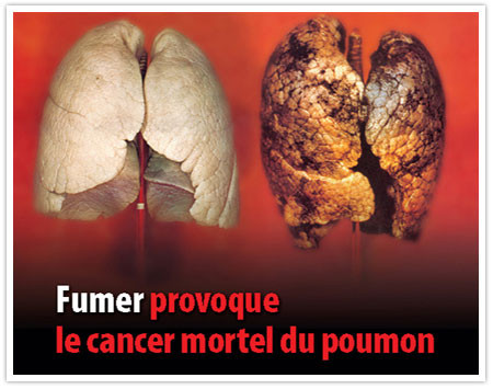 A gauche: aspect de poumons chez un non-fumeur. A droite: aspect des poumons d'un fumeur (recouvert de goudron, aspect brûlé...).
