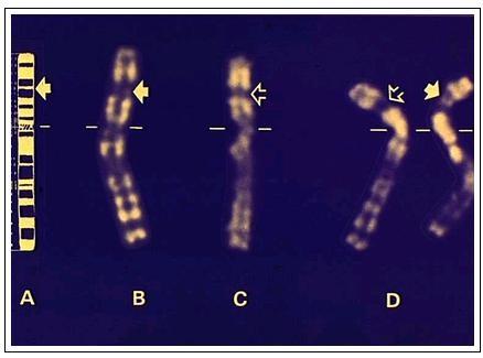 Schéma et chromosome X d'une personne atteinte de la myopathie de Duchenne. Source: INSERM.