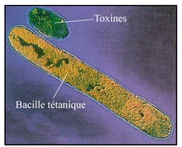 Bacille du tétanos et une vésicule de toxine libérée par la bactérie. Sources: http://louisa-paulin.ecollege.haute-garonne.fr/espaces-pedagogiques/svt/niveau-troisieme/l-infection-microbienne-14346.htm