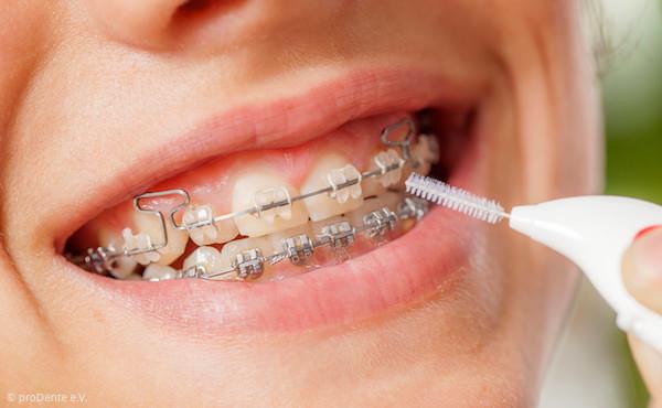 Während der kieferorthopädischen Behandlung ist die sorgfältige Zahnpflege besonders wichtig!