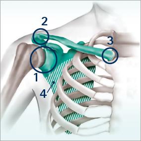 Das Schultergelenk, ein komplexes Konstrukt.