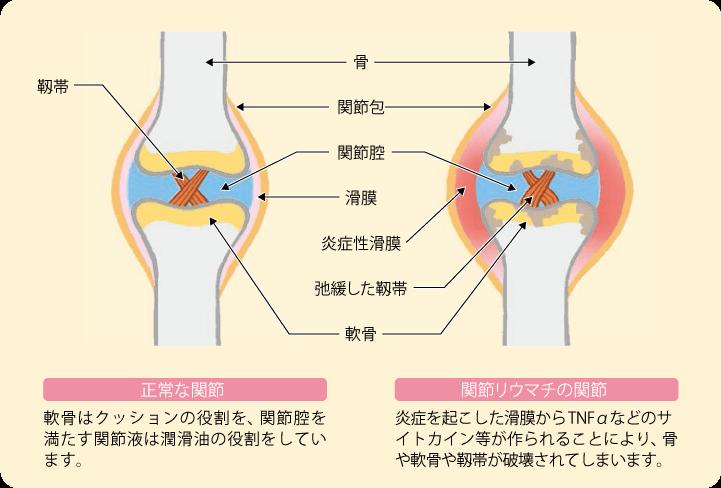 関節リウマチの関節