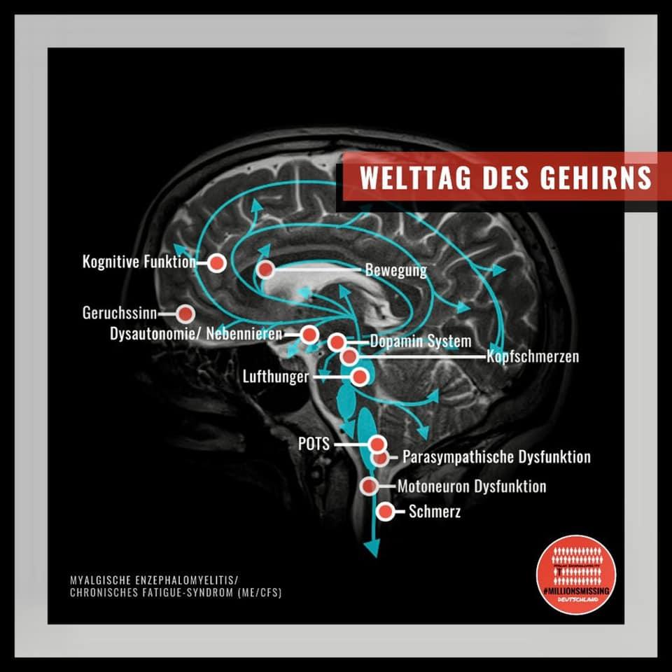 Offener Brief der Deutschen Gesellschaft für ME/CFS zum Welttag des Gehirns