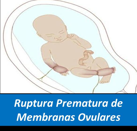 RPM, Ruptura Prematura de Membranas Ovulares