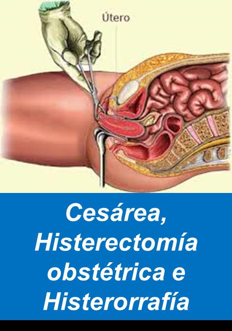 Cesárea, Histerectomia, Ginecologia