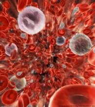 sepsis, sirs, sindrome de respuesta inflamatoria sistemica, choque septico, disfuncion de organos multiples