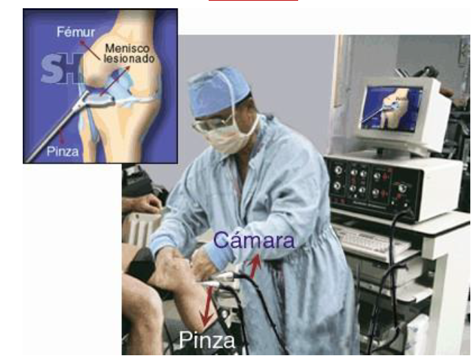 Artroscopia de la rodilla. Se ha introducida un lente en la rodilla que transmite a un monitor la imagen del interior de la misma mientras se realiza reparación de una lesión de menisco.