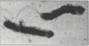 helicobacter pylori, gastritis, ulcera peptica, pirosis, vomitos, nauseas