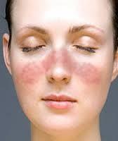 lupus eritematoso sistemico, lupus, signo de alas de mariposa, nefropatia lupica, anticuerpos DNA