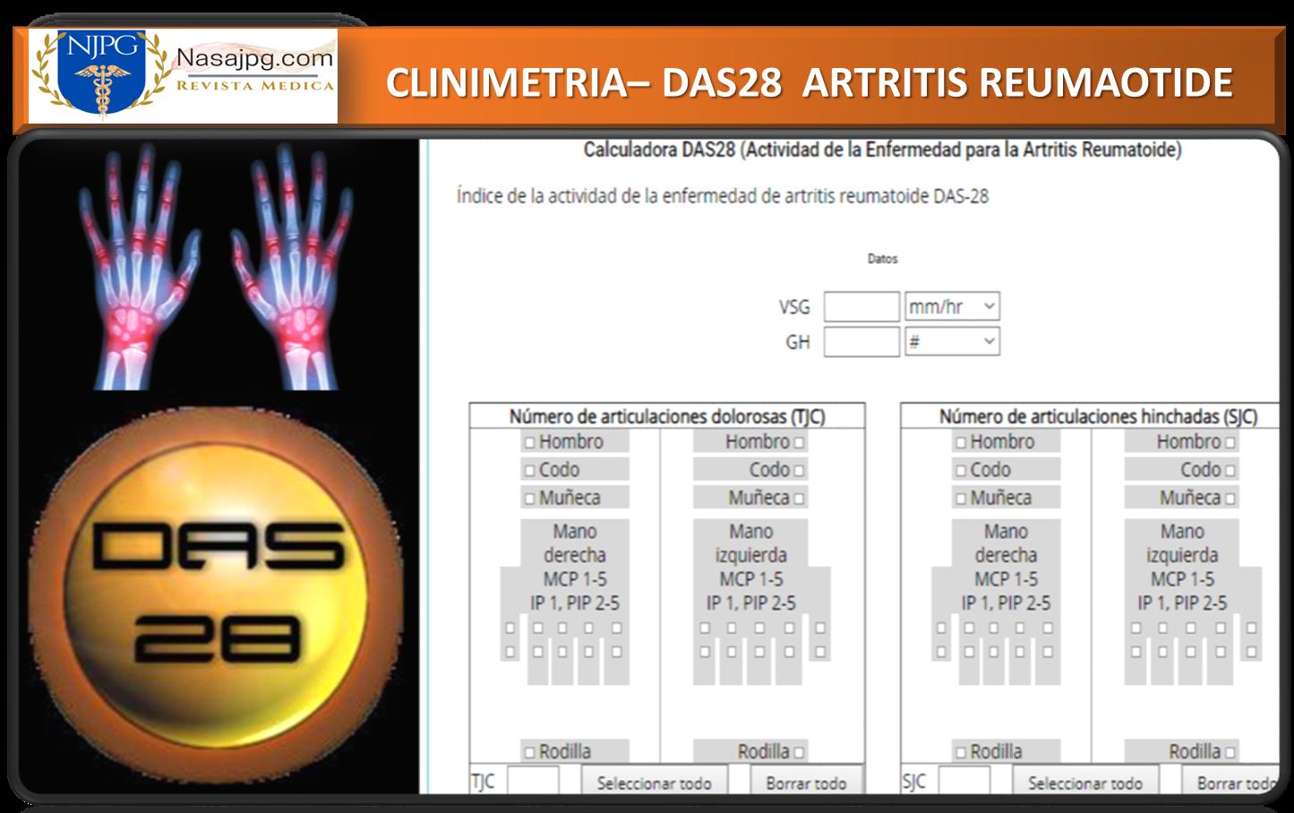 Calculadora DAS28 (Actividad de la Enfermedad para la Artritis Reumatoide)