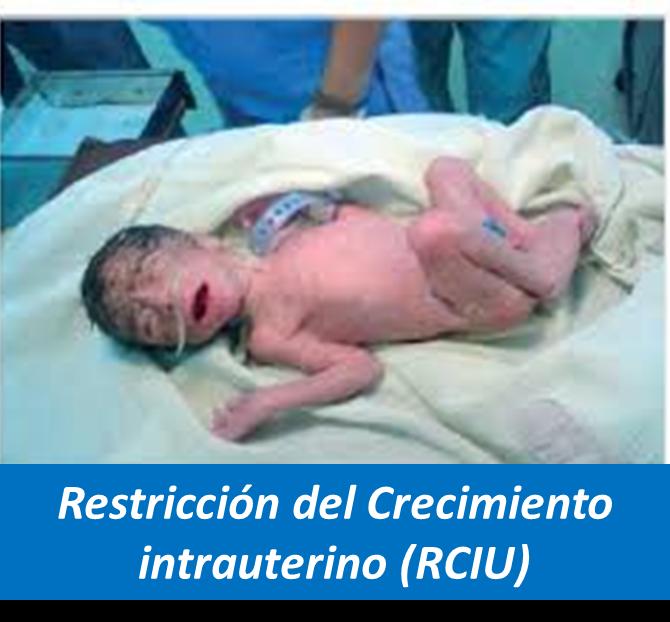Restricción del Crecimiento Intrauterino, RCIU