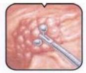Adenocarcinoma gastrico linfoma no hodgkiniano