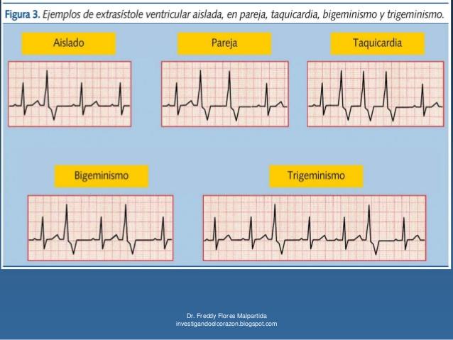 Ejemplos de Extrasistole Venticular Aislada, en pareja, taquicardia, bigeminismo y trigeminismo