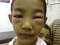 sindrome nefrotico en niños