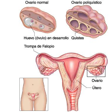 ovario poliquistico,trompa de falopio,utero,quiste,infertilidad