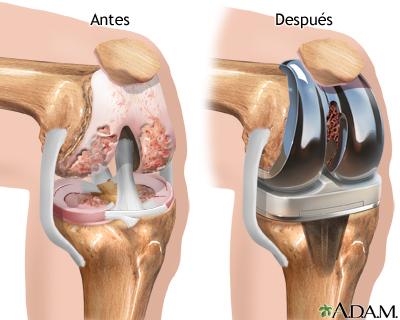 Simulador Medico de Cirugia de Reemplazo de rodilla en Ortopedia