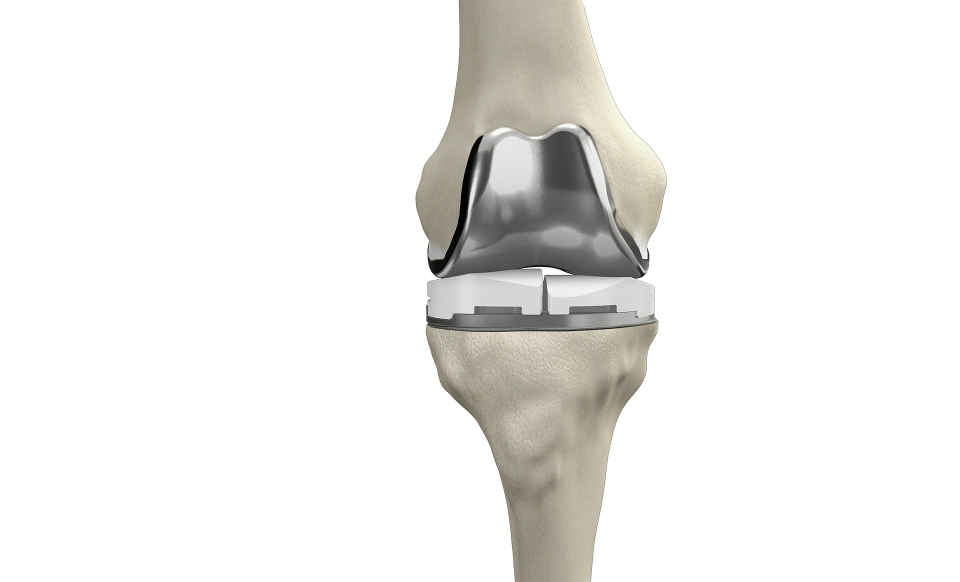 Knie- und Hüftprothesen nach der Operation galten lange als Grund für eine Antibiotika Gabe beim Zahnarzt Besuch