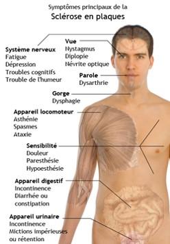 symptomes-principaux-de-la-sclerose-en-plaques
