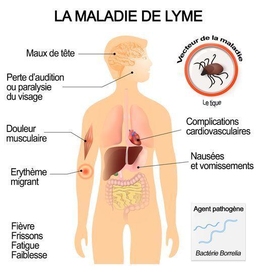 symptomes-de-la-maladie-de-lyme