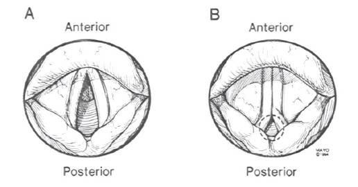 normale (links) und paradoxe Einatemposition der Stimmlippen bei VCD (rechts)