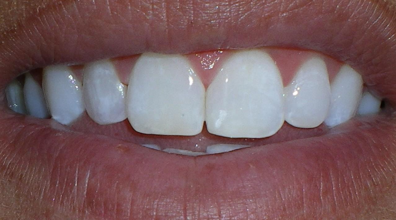 White Fillings - Strong Family Dentistry Spanish Fork