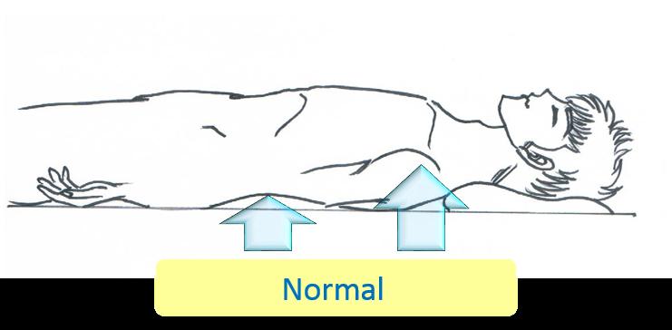施術後、筋肉がゆるみ、ベッドに背中全体が着いて休めている状態に変化した