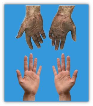 operatie schone handen
