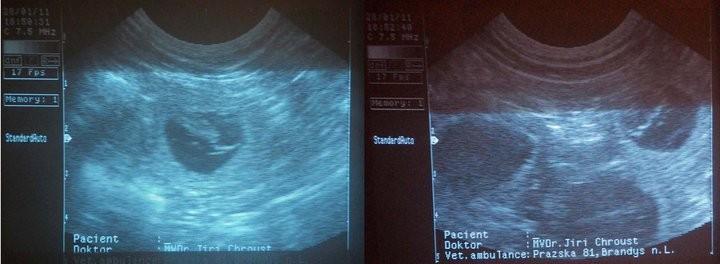 Ultraschall es sind merere Welpen