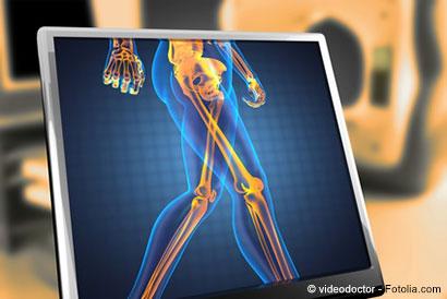 Röntgenbild auf Monitor - © videodoctor - Fotolia.com