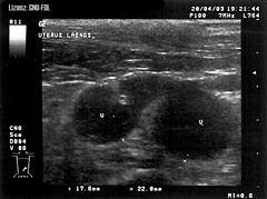 nachsorge gebärmutterentfernung