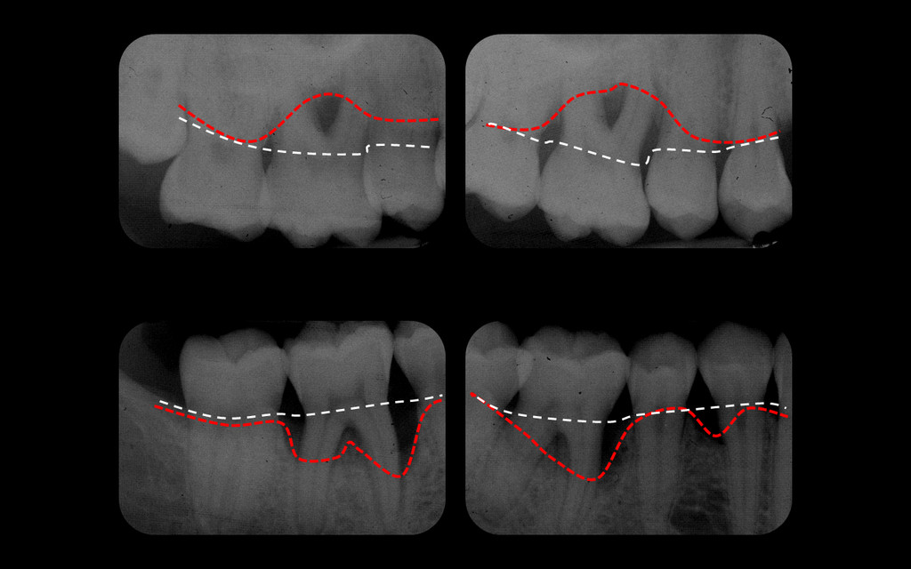 Radiographie côté droit de la même parodontite agressive, montrant en blanc la position normale de l'os et en rouge la position actuelle, pathologique.