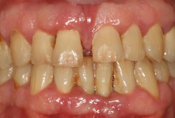 La gencive autour de l'incisive centrale à gauche sur l'image est rouge, inflammatoire. La dent bouge.