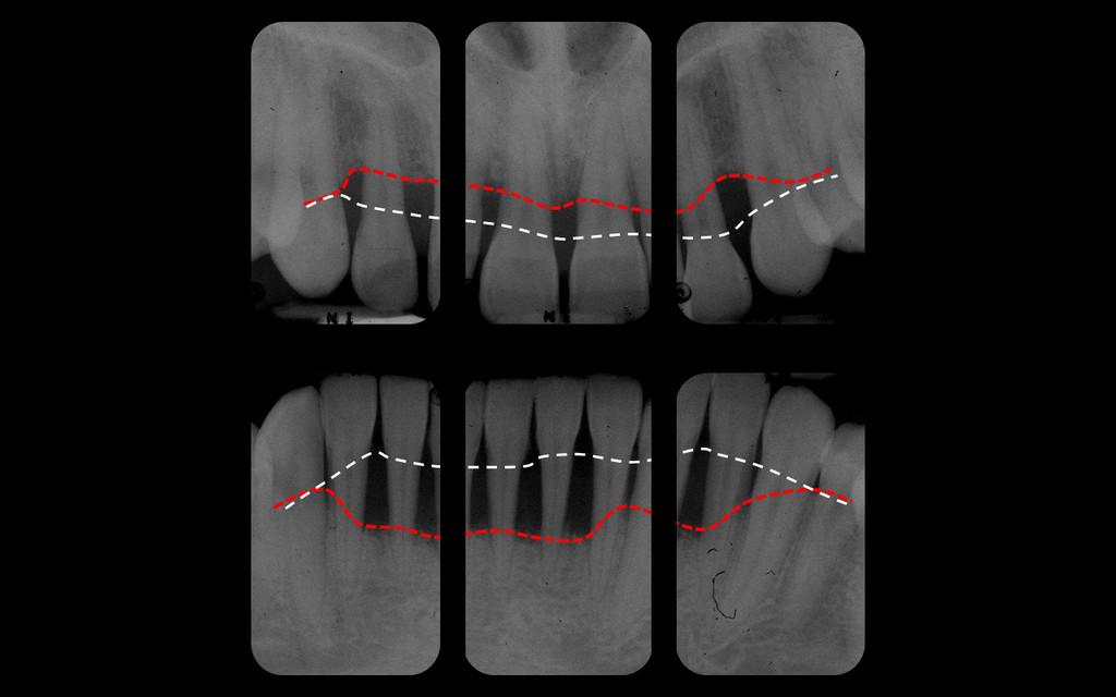 Radiographie des dents de devant de la même parodontite agressive, montrant en blanc la position normale de l'os et en rouge la position actuelle, pathologique.