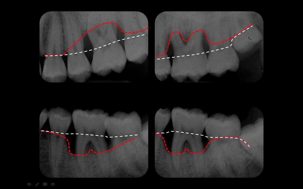 Radiographie côté gauche de la même parodontite agressive, montrant en blanc la position normale de l'os et en rouge la position actuelle, pathologique.