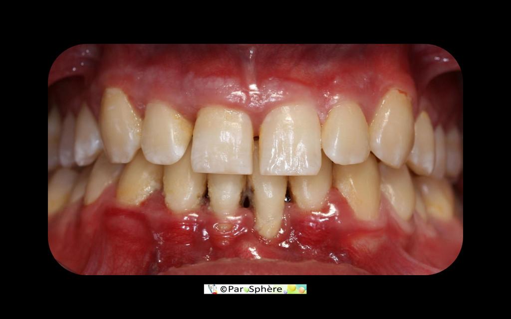 Vue clinique d'une parodontite agressive sévère chez une jeune homme de 20 ans. L'aspect clinique ne révèle pas nécessairement la sévérité de l'atteinte.