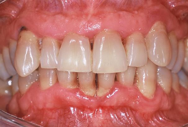 Des trous noirs apparaissent entre les dents; les dents du bas se déchaussent.