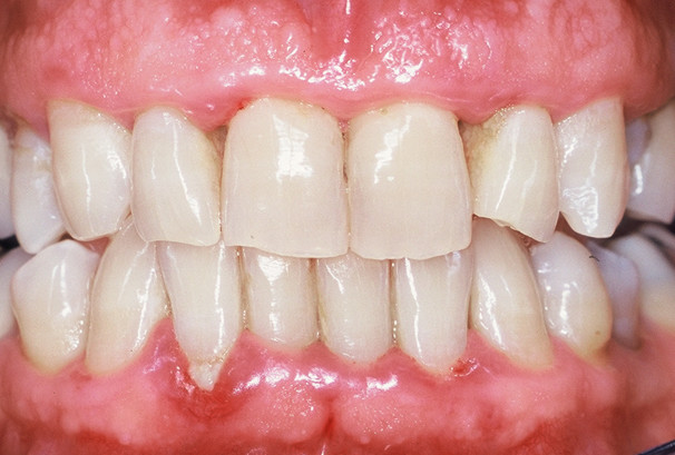 Trous noirs entre les dents, gencive rouge et début de déchaussement sur l'incisive en bas à gauche sur l'image.