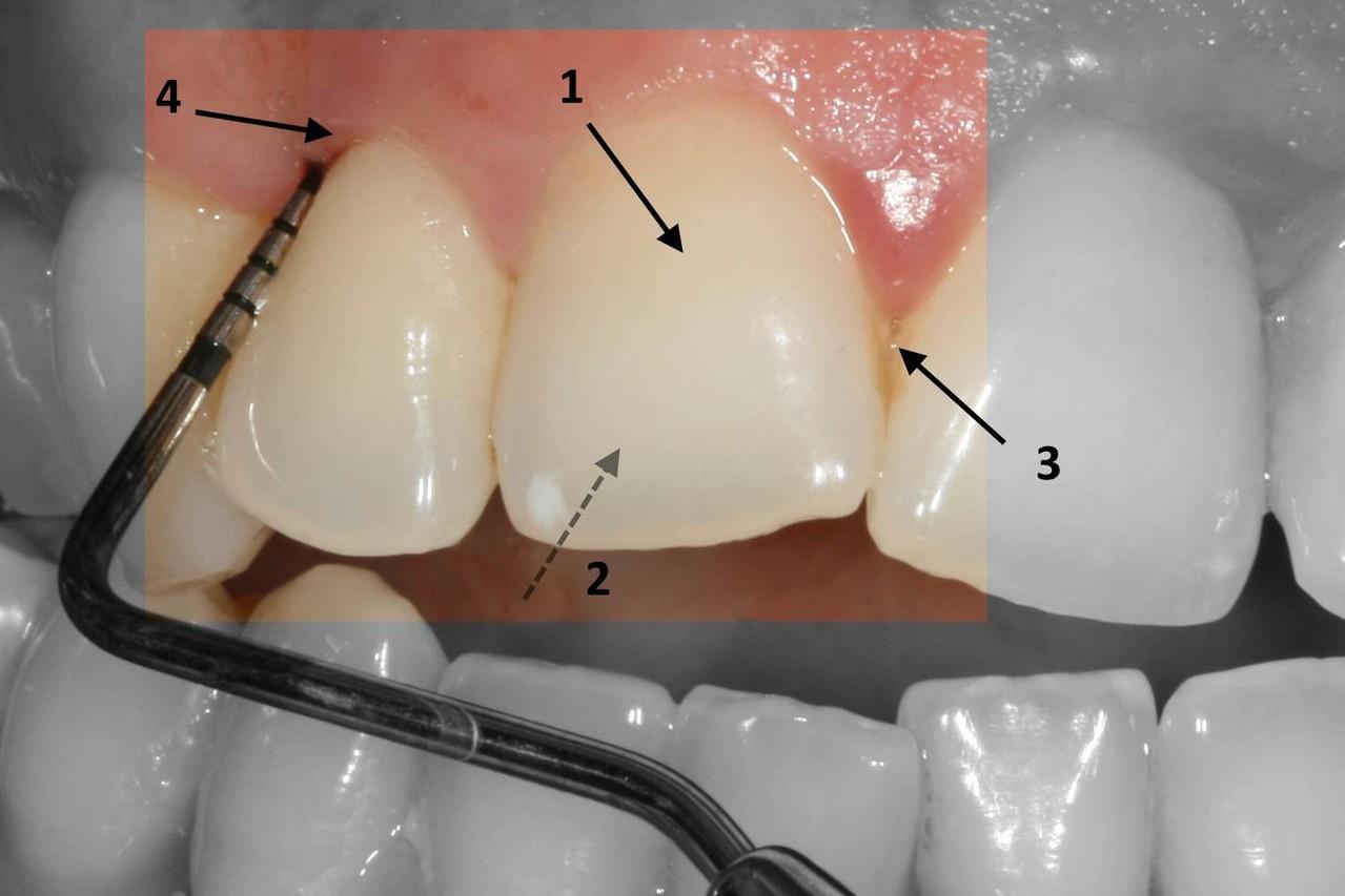 La Premiere Phase Du Traitement Parodontal Parosphere
