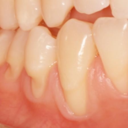 Récessions tissulaires marginales et usures des dents dûes à un brossage traumatique.