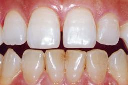 術後拡大(上顎前歯のみ漂白)