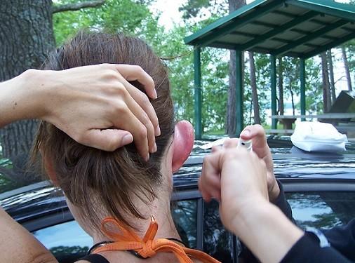 Nach Insektenstich geschwollenes Ohr